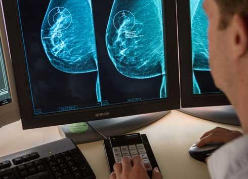 mammographie_befundung