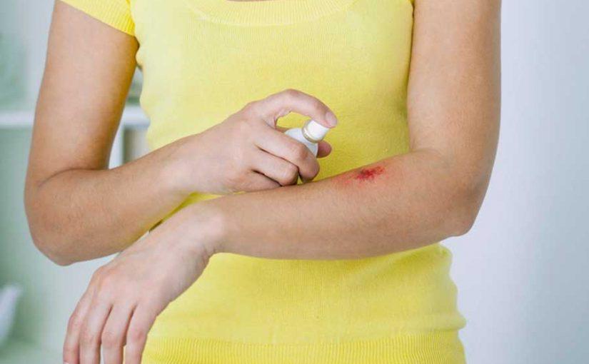 Auch kleine Wunden sorgfältig desinfizieren